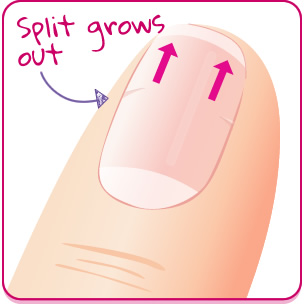 Products For Split Nails