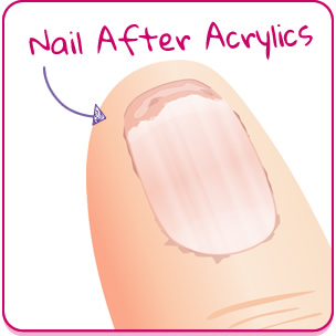 After Acrylic Nail Care
