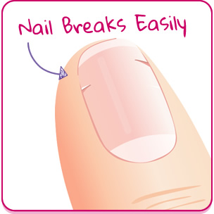 My Nails Break Easily