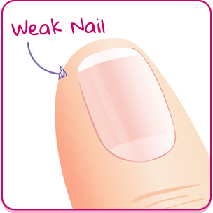Fixing Weak Nails